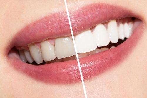 Fairfield Dentists